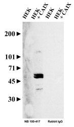 Carbonic Anhydrase IX Antibody (PA1-16592) in Western Blot