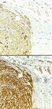 Survivin Antibody (PA1-16836) in Immunohistochemistry
