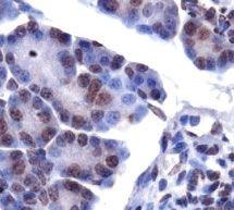 LPIN1 Antibody (PA1-16997)