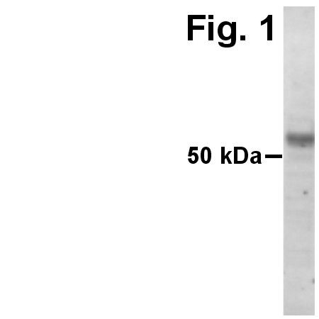 ADAMTS15 Antibody (PA1-1743) in Western Blot