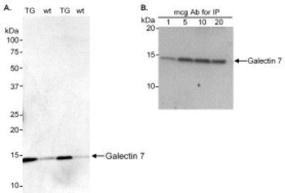 Galectin 7 Antibody (PA1-20164)