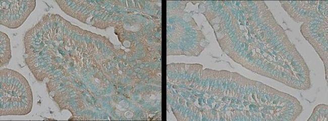 TNIK Antibody (PA1-20639) in Immunohistochemistry (Paraffin)