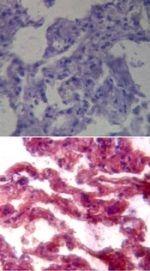 TLR7 Antibody (PA1-20817) in Immunohistochemistry (Paraffin)