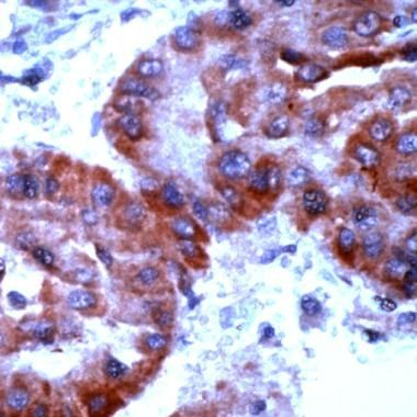 TrxR2 Antibody (PA1-20940) in Immunohistochemistry