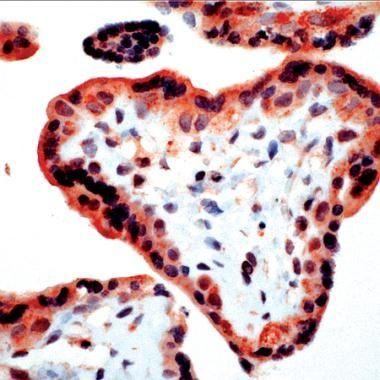 Bim Antibody (PA1-20949) in Immunohistochemistry