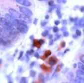 CD178 Antibody (PA1-21019) in Immunohistochemistry