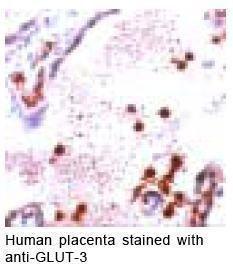 GLUT3 Antibody (PA1-21043) in Immunohistochemistry