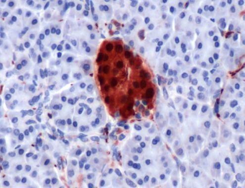 PGP9.5 Antibody (PA1-21097)