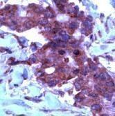 TIMP2 Antibody (PA1-21145)