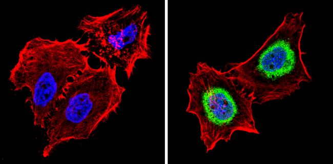 THRA Antibody (PA1-211A) in Immunofluorescence