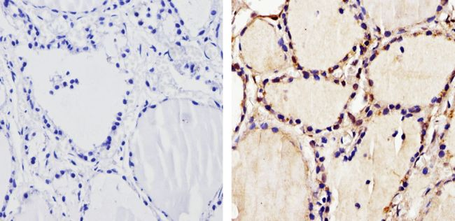 THRA Antibody (PA1-211A) in Immunohistochemistry (Paraffin)