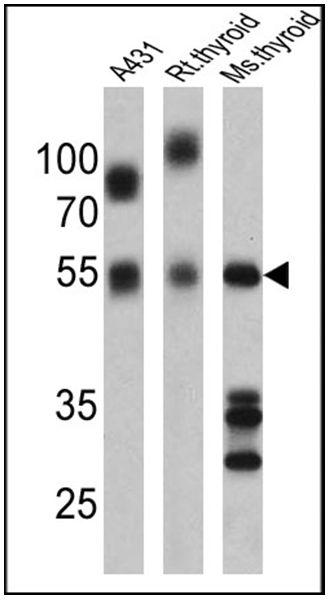 THRA Antibody (PA1-211A) in Western Blot
