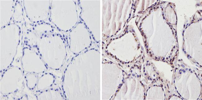 THRB Antibody (PA1-213A) in Immunohistochemistry (Paraffin)