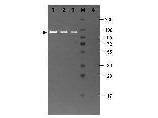 beta Galactosidase Antibody (PA1-21477) in Western Blot