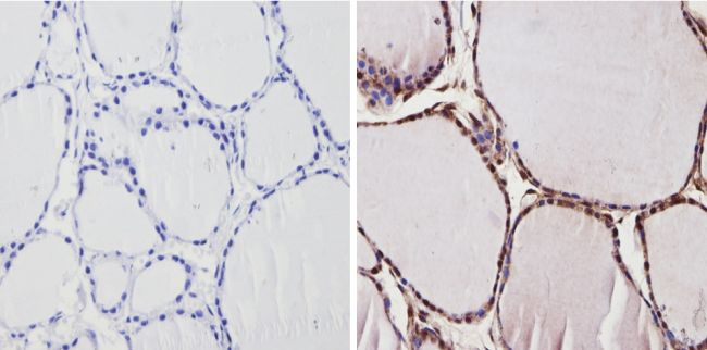 THRA Antibody (PA1-216) in Immunohistochemistry (Paraffin)