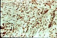 VEGF Receptor 1 Antibody (PA1-21731) in Immunohistochemistry