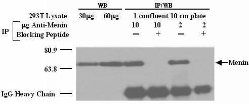 Menin Antibody (PA1-21762)