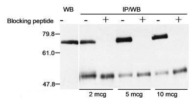 Menin Antibody (PA1-21995) in Western Blot