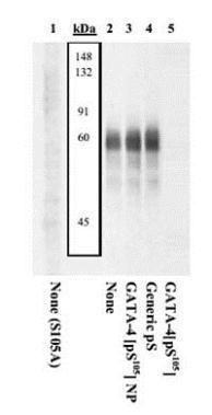 Phospho-GATA4 (Ser105) Antibody (PA1-22003) in Western Blot