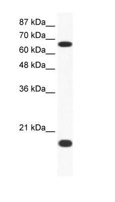 Cullin 1 Antibody (PA1-24260) in Western Blot