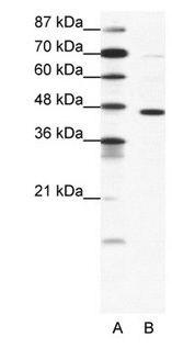 GABRP Antibody (PA1-24281)
