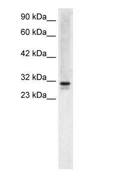 EAP30 Antibody (PA1-24395) in Western Blot
