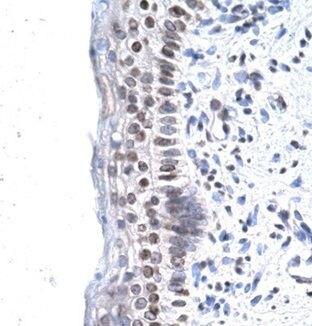 ZNF500 Antibody (PA1-24397) in Immunohistochemistry