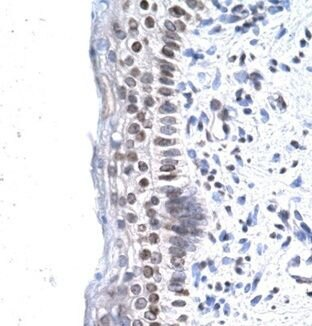 ZNF500 Antibody (PA1-24397)
