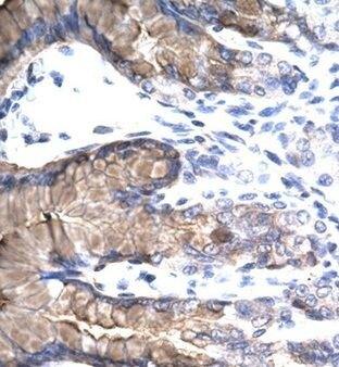 NR4A1 Antibody (PA1-24400) in Immunohistochemistry