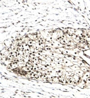 RUVBL2 Antibody (PA1-24414)