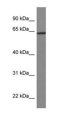 HOXD3 Antibody (PA1-24444)