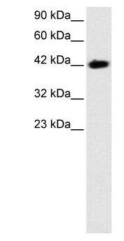 BARHL2 Antibody (PA1-24446) in Western Blot