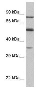 PAX4 Antibody (PA1-24449) in Western Blot