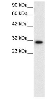 DBP Antibody (PA1-24453) in Western Blot