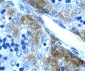GATA3 Antibody (PA1-24465) in Immunohistochemistry