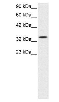 SMAD6 Antibody (PA1-24467) in Western Blot