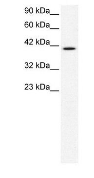 CCRN4L Antibody (PA1-24489) in Western Blot