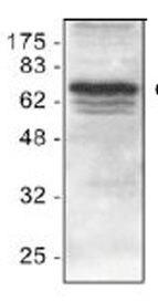 cIAP1 Antibody (PA1-26459) in Western Blot