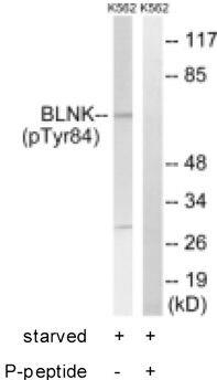 Phospho-BLNK (Tyr84) Antibody (PA1-26639) in Western Blot
