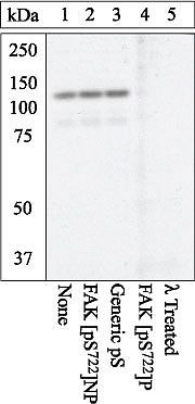 Phospho-FAK (Ser722) Antibody (PA1-26668) in Western Blot