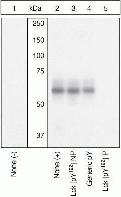 Phospho-LCK (Tyr192) Antibody (PA1-26702)