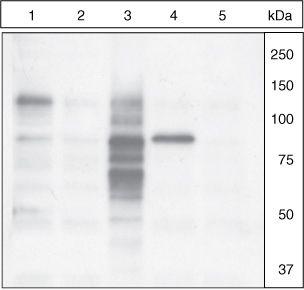 Phospho-Cortactin (Tyr421) Antibody (PA1-26704) in Western Blot