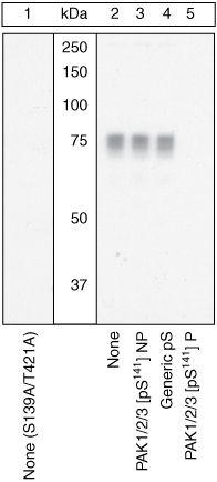 Phospho-PAK1/2/3 (Ser141) Antibody (PA1-26711) in Western Blot