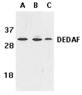 DEDAF Antibody (PA1-26739) in Western Blot