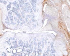 IL-6 Antibody (PA1-26811) in Immunohistochemistry