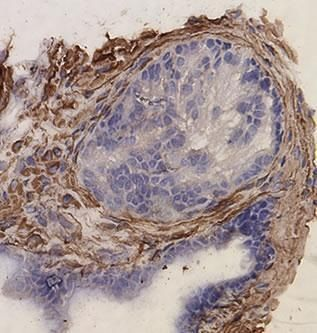 Desmin Antibody (PA1-27003) in Immunohistochemistry