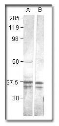 CaMKI Antibody (PA1-28252) in Western Blot