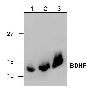 BDNF Antibody (PA1-28301)