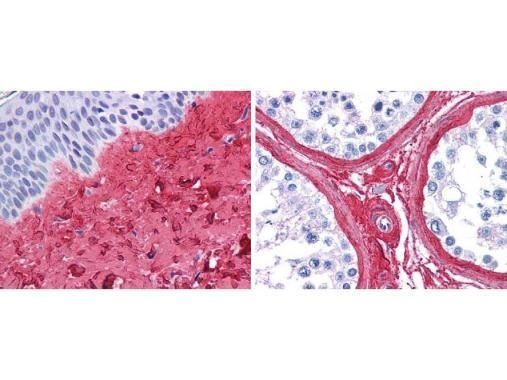 Collagen III Antibody (PA1-28870) in Immunohistochemistry (Paraffin)
