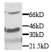 CX3CL1 Antibody (PA1-28897) in Western Blot